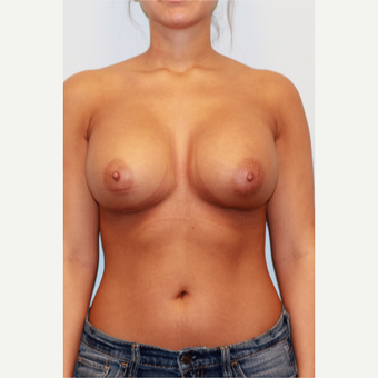 18-24 year old woman treated with Breast Implants after 3026863