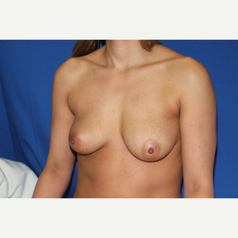 32 year old woman treated with Bilateral Breast Augmentation with Circumareolar Lift before 3843896