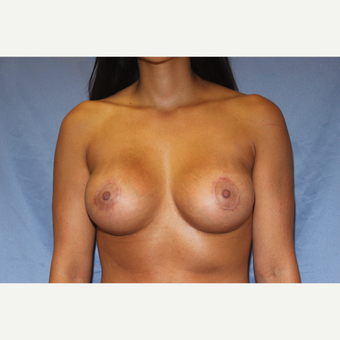 32 year old woman treated with Bilateral Breast Augmentation with Circumareolar Lift after 3843896