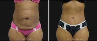 Tummy Tuck before 692776