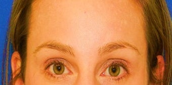 Brow Lift after 1270703
