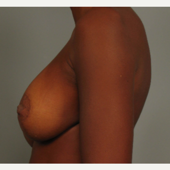 35-44 year old woman treated with Breast Lift with Implants after 3464584