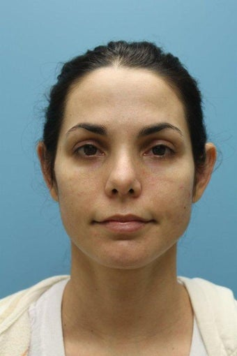 Female Treated for Revision Rhinoplasty