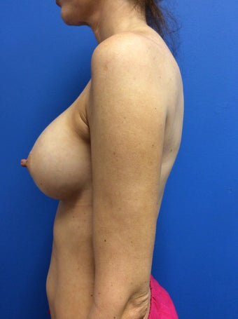 Breast augmentation High Profile Gel Implants (Natrelle Style 20) 1378879