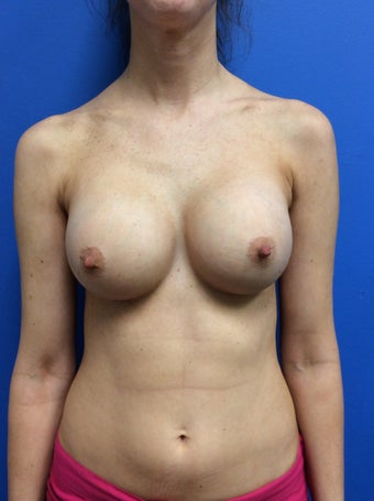 Breast augmentation High Profile Gel Implants (Natrelle Style 20) after 1378879