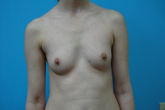 Breast augmentation High Profile Gel Implants (Natrelle Style 20) before 1378879