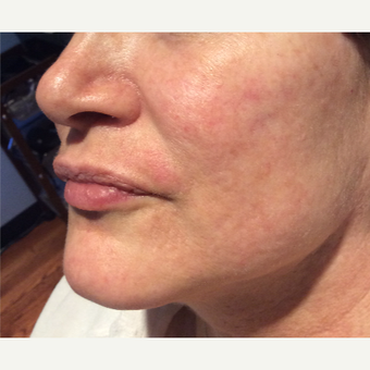 45-54 year old woman treated with Acne Scars Treatment after 3753356