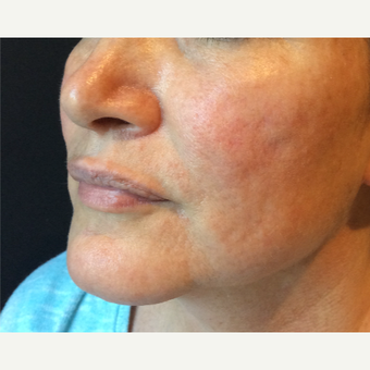 45-54 year old woman treated with Acne Scars Treatment before 3753356