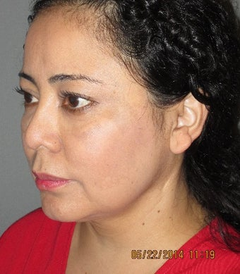 45-54 year old woman treated with Lower Face Lift before 1893973