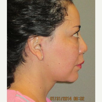 45-54 year old woman treated with Lower Face Lift 1893973