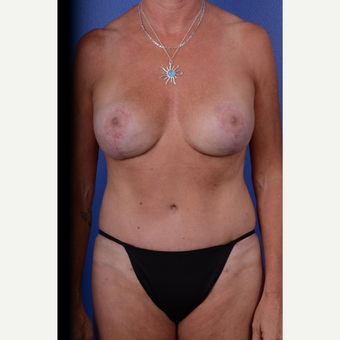 45-54 year old woman treated with Mommy Makeover after 3653132