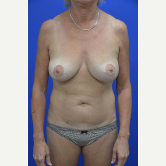 45-54 year old woman treated with Mommy Makeover before 3653132
