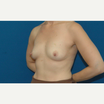 45 year old woman treated with Breast Augmentation before 3266473