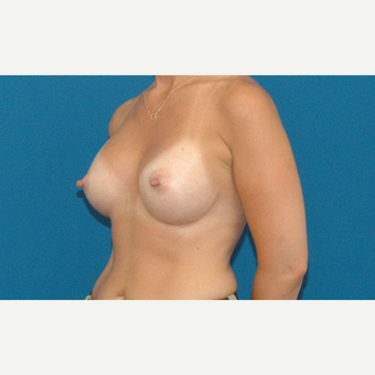 45 year old woman treated with Breast Augmentation after 3266473