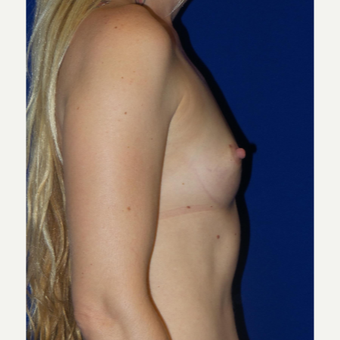 35-44 year old woman treated with Breast Augmentation before 3253825