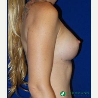 35-44 year old woman treated with Breast Augmentation after 3253825