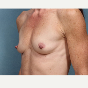 45-54 year old woman treated with Breast Augmentation before 3523800