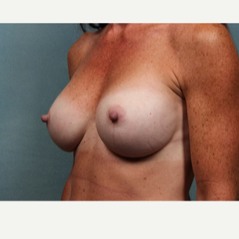 45-54 year old woman treated with Breast Augmentation after 3523800
