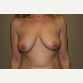 25-34 year old woman treated with Breast Lift with Implants before 3769606