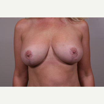 25-34 year old woman treated with Breast Lift with Implants after 3769606