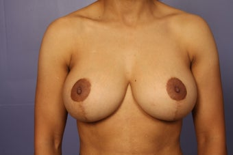 42 yr old Breast Reduction after 1013905