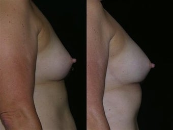 Implant Removal & Fat Grafting Breast Augmentation before 1053856