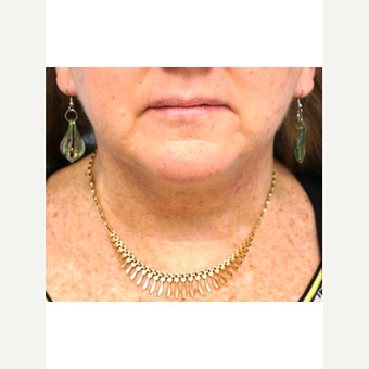 55-64 year old woman treated with Neck Lift after 3653640