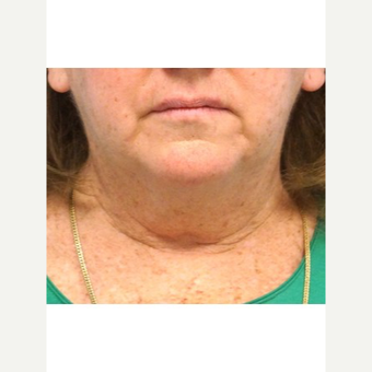 55-64 year old woman treated with Neck Lift before 3653640