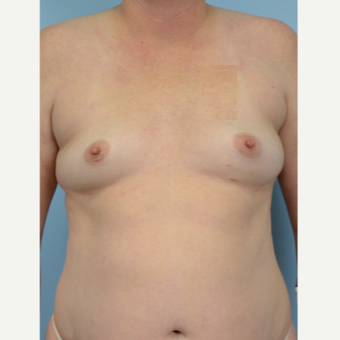 45-54 year old woman treated with Breast Fat Transfer before 3432093