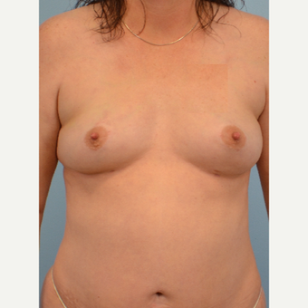 45-54 year old woman treated with Breast Fat Transfer after 3432093