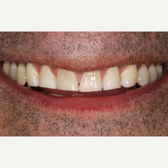 25-34 year old man treated with Porcelain Veneers before 3629632