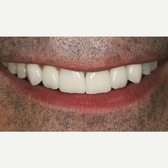 25-34 year old man treated with Porcelain Veneers after 3629632