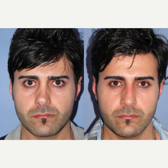 35-44 year old man treated with Revision Rhinoplasty before 3522859