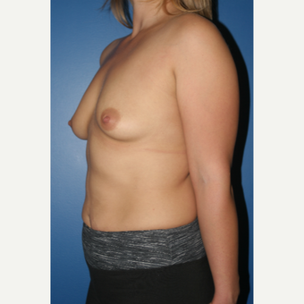 25-34 year old woman treated with Breast Augmentation before 3789186