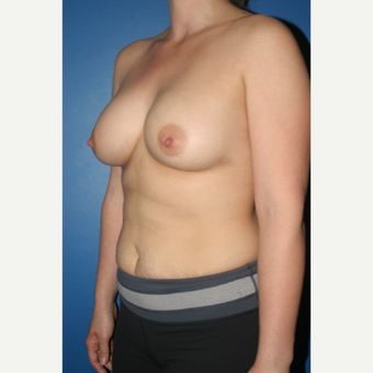 25-34 year old woman treated with Breast Augmentation after 3789186