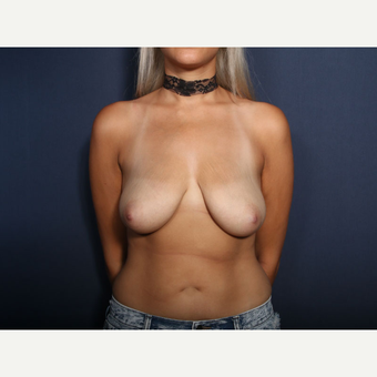 25-34 year old woman treated with Breast Lift with Implants (view 1 of 2) before 3769605