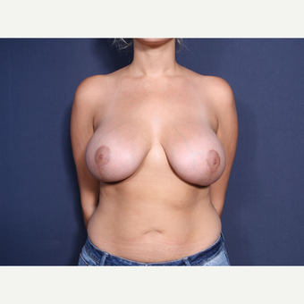 25-34 year old woman treated with Breast Lift with Implants (view 1 of 2) after 3769605