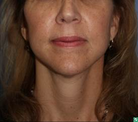 face and neck lift, 54 year old