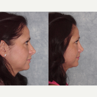 35-44 year old woman treated with Rhinoplasty before 3224100