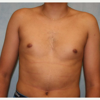 18-24 year old man treated with Male Breast Reduction before 3487756