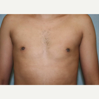 18-24 year old man treated with Male Breast Reduction after 3487756