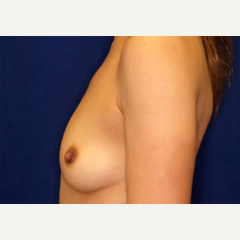 18-24 year old woman treated with Breast Augmentation before 3005831