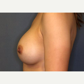 18-24 year old woman treated with Breast Augmentation after 3005831