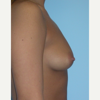 25 year old woman treated with Breast Augmentation increasing from a B to D cup with silicone implan before 3212886