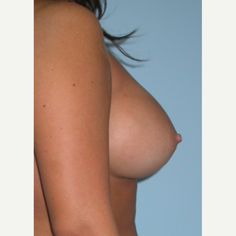 25 year old woman treated with Breast Augmentation increasing from a B to D cup with silicone implan after 3212886
