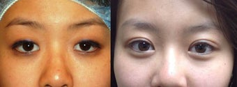 Asian eyelid surgery (asymmetry) before 966096