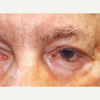 75 and up year old man treated with Eyelid Entropion Repair before 3147969