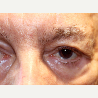 75 and up year old man treated with Eyelid Entropion Repair after 3147969