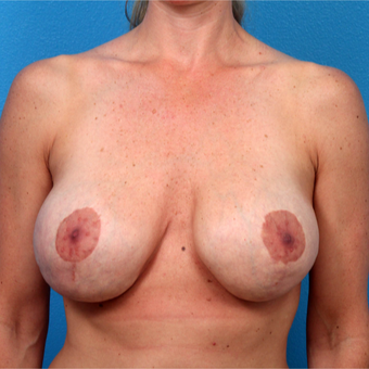 35-44 year old woman treated with Breast Implant Revision before 3366747