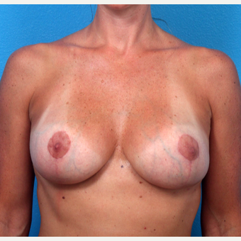 35-44 year old woman treated with Breast Implant Revision after 3366747